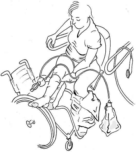 User inserts catheter. Illustration: Lars 'Geson' Andersson