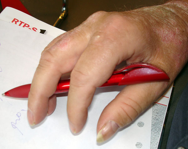 Pen inserted between thumb/index finger and ring finger